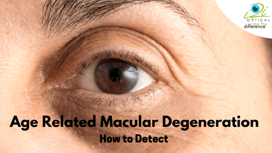 age related macular degeneration leads to severe Age-related macular degeneration is a disease that causes blurring of your central vision the blurring happens because of damage to the macula, a small it does not affect side vision, so it does not lead to complete blindness there are two types of macular degeneration-wet and dry the dry form is by.